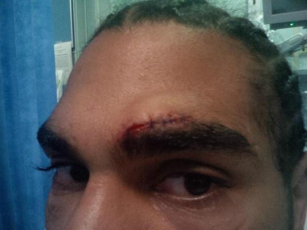 Дэвид Хэй получил рассечение на тренировке, бой с Фьюри отложен (+ фото)
