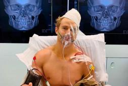 Кадр дня: Сейдж Норткатт перенес 9-часовую операцию после поражения нокаутом
