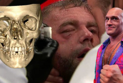 Рентген черепа Сондерса после боя с Канело, Фьюри об Уайлдере (видео)