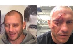 Дональд Серроне: Я получил травму глаза на охоте из-за лошади