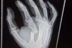 Тренер Макгрегора: Тейпировка руки — бессмысленная трата времени